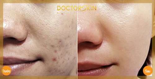 Trii mun Skin Doctor (4)