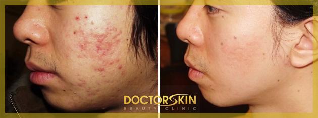Trii mun Skin Doctor (5)