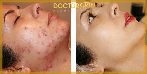 Trii mun Skin Doctor (6)