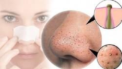 Trii mun Skin Doctor (8)